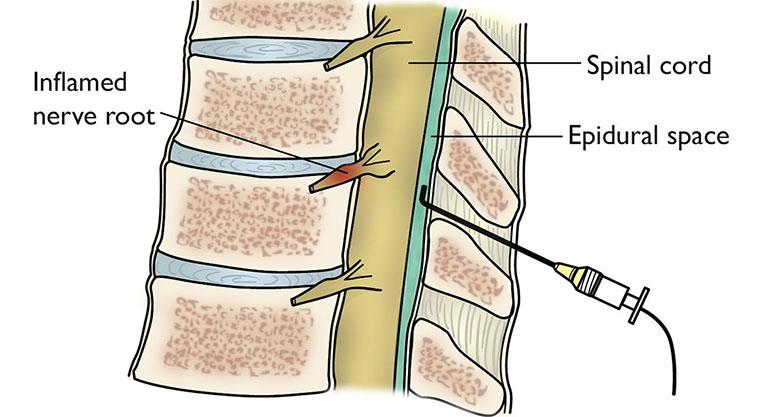 care provoacă durere în articulațiile umărului vătămarea articulară decât a trata