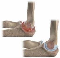 clicuri în tratamentul articulațiilor cotului