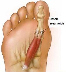 articulația pe piciorul mic doare