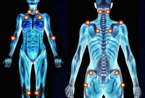 dureri articulare cu fibromialgie