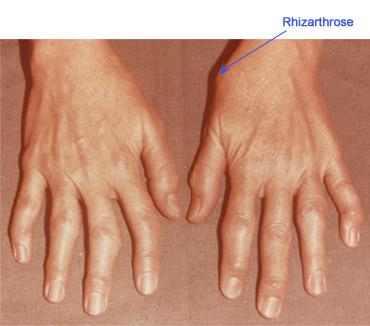 articulația degetului a crescut după rănire)