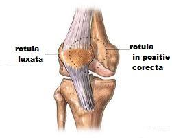 luxația și tratamentul genunchiului
