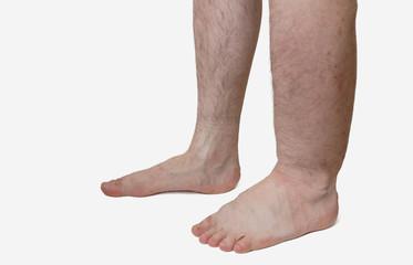 Picioare umflate - cauze, prevenire si tratament
