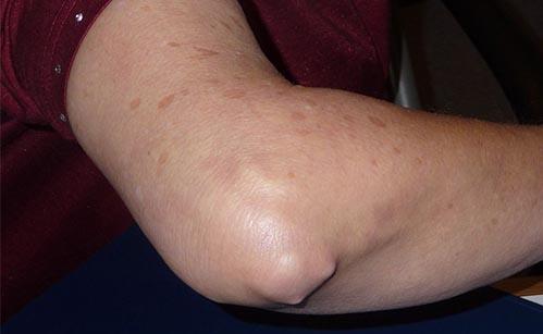 simptomele tratamentului artritei cotului
