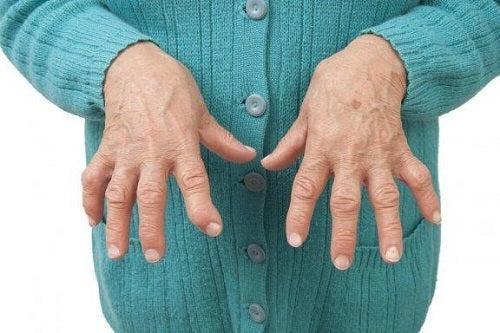 brațe de lebădă pentru artrita reumatoidă)