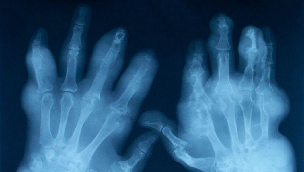 care este diferența dintre artrita și artroza mâinilor)