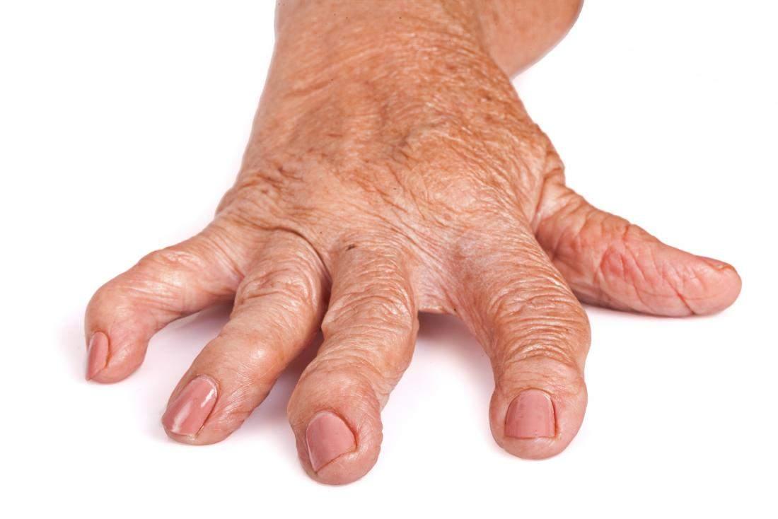 artrita reumatoidă a degetelor simptomele de tratament