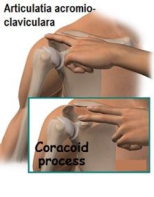 cum să tratezi durerea articulară în articulația cotului unguent voltaren pentru osteochondroza
