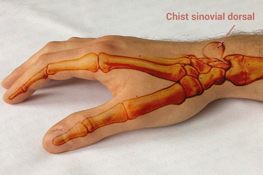 cauzele și tratamentul durerii în articulația umărului este posibilă vindecarea artrozei deformante a articulației genunchiului