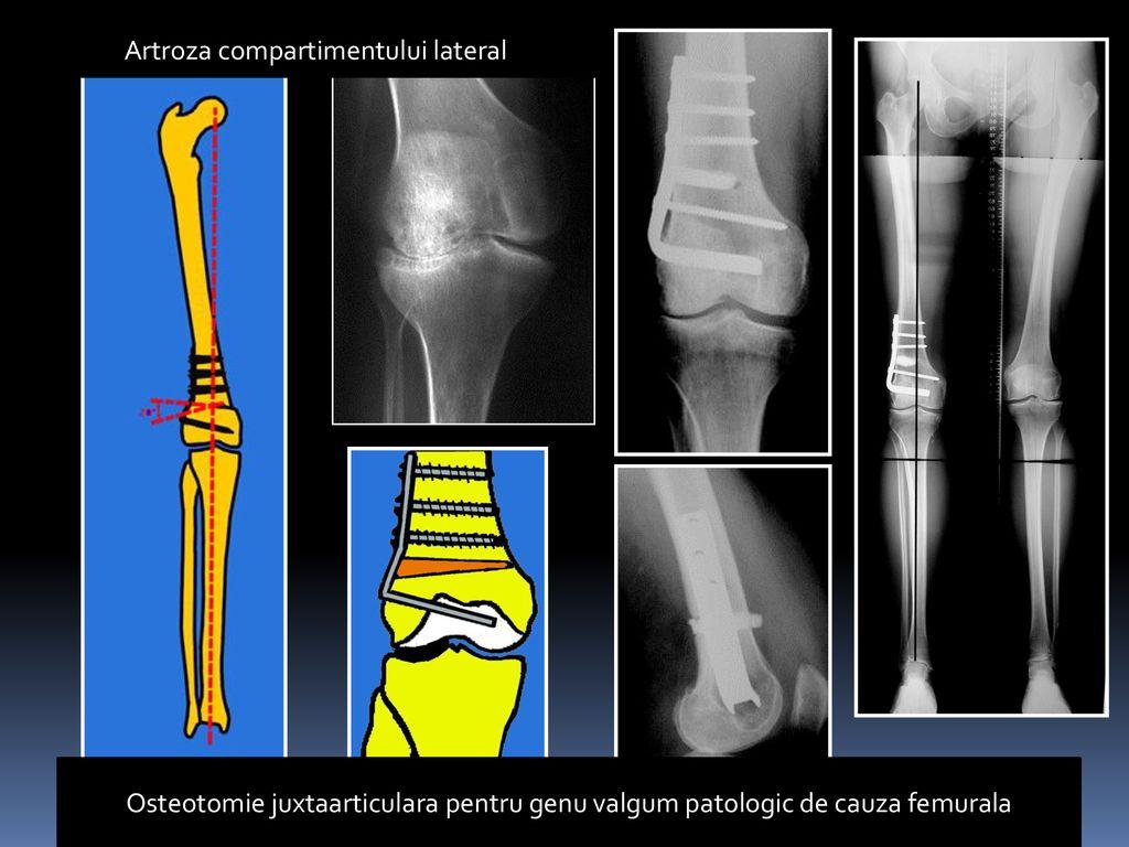 artroza deformării articulare