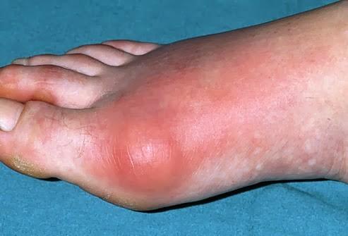 1-2 artrite ale șoldului