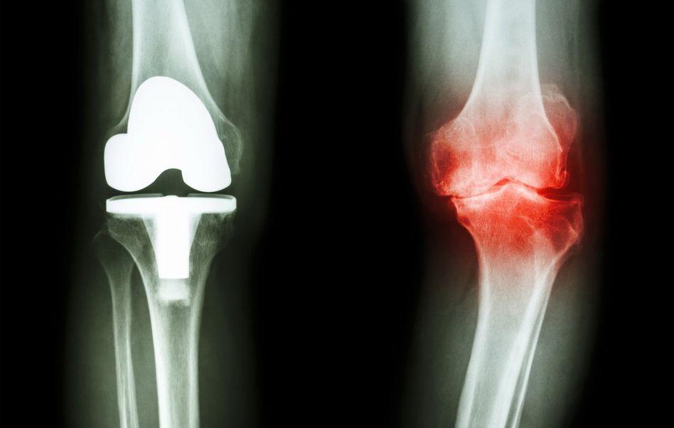 artroza alergică a genunchiului