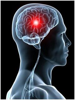 articulațiile doare accident vascular cerebral când îmi răneau articulațiile