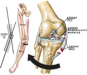 deteriorarea parțială a ligamentelor tratamentului articulației genunchiului)