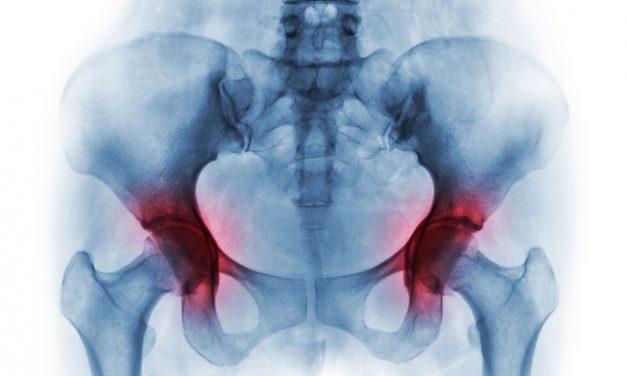 tratament ortopedic pentru artroză)