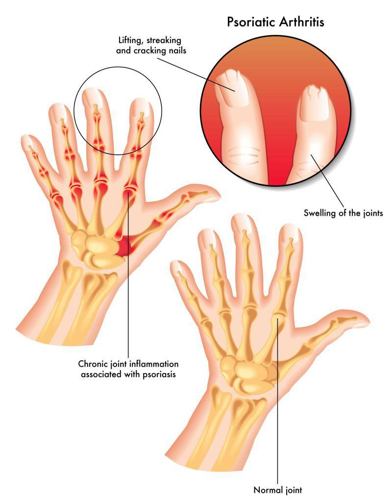 artrita pe simptomele și tratamentul mâinilor)