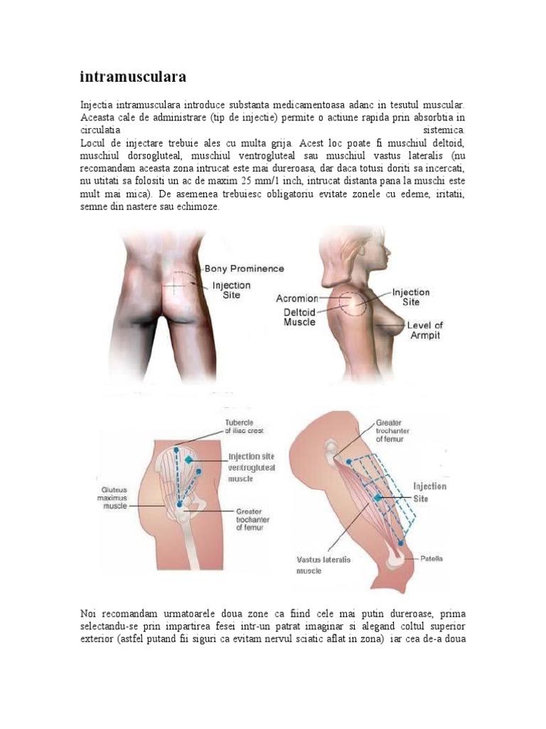 dureri de genunchi intramusculare