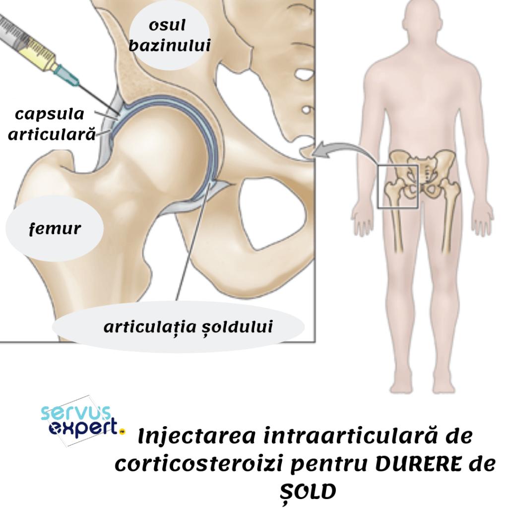 dureri de dimineață în articulațiile umărului dureri la nivelul articulației cotului și a mușchilor