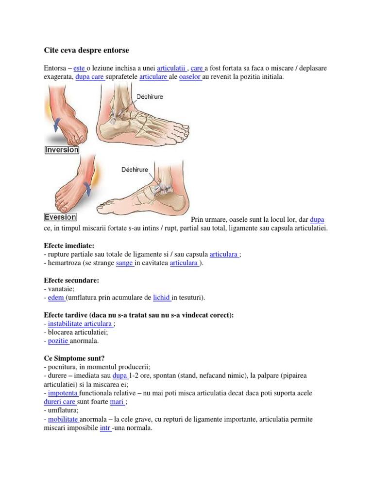 gon artroza cum se tratează produs de tratament comun