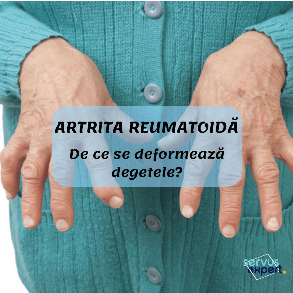 semne ale artritei și artrozei degetelor)