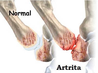 artrita tratamentul articulației degetului mare