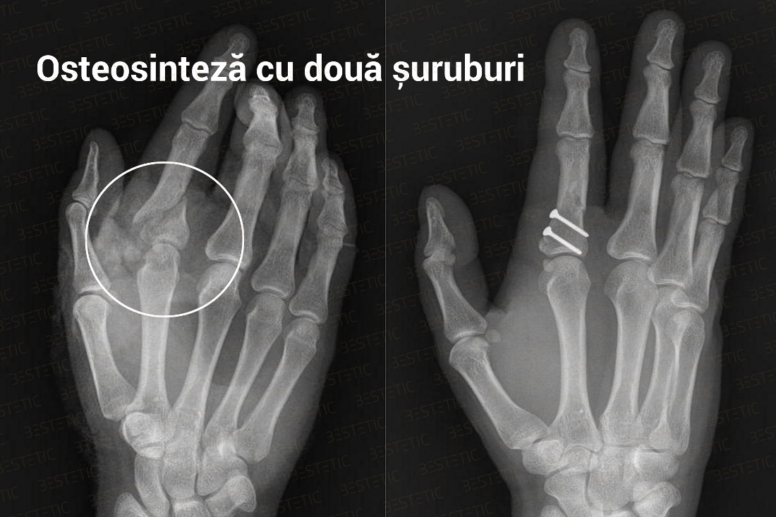 dureri articulare degetele mari după fractură)