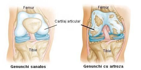artroza simptomelor articulației genunchiului și)