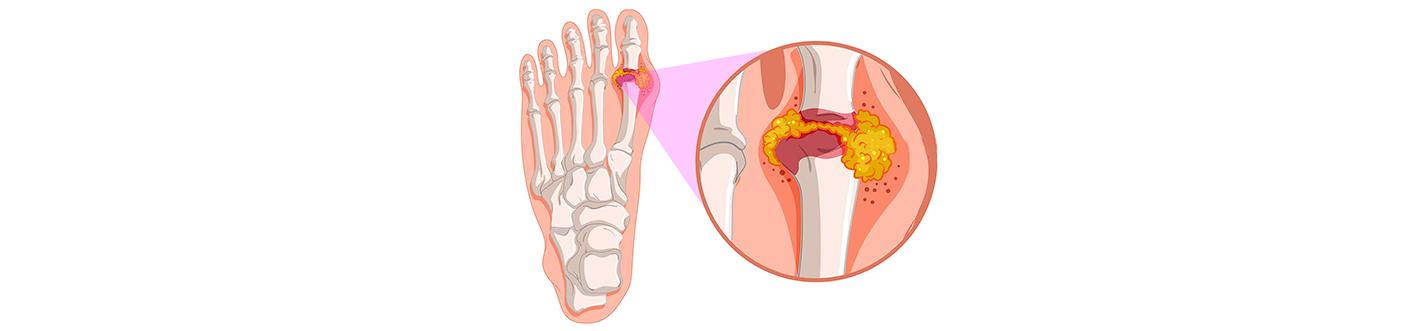 acidul urinar poate fi crescut cu artroza articulațiilor)