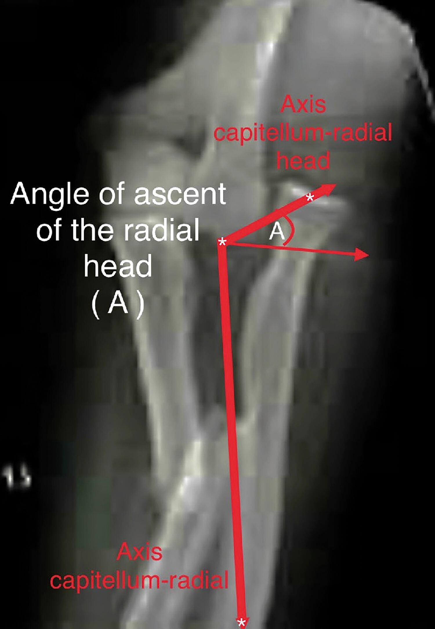 dureri articulare din nervi tratamentul articulațiilor în Kamchatka