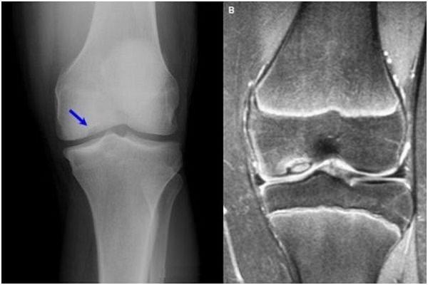 artroza deformării articulației șoldului 2 grade