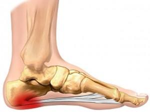 articulație în apropierea călcâiului dacă articulațiile doare și răsucesc