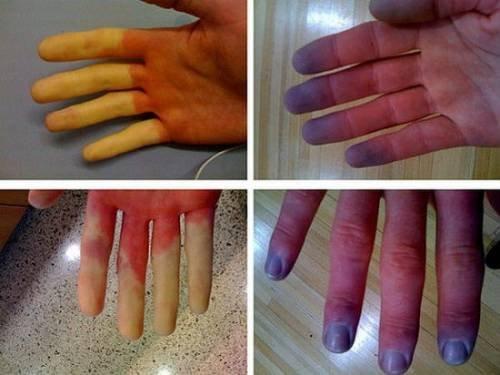 Artrita falangelui degetului arătător. Increderea este baza relatiei medic - pacient