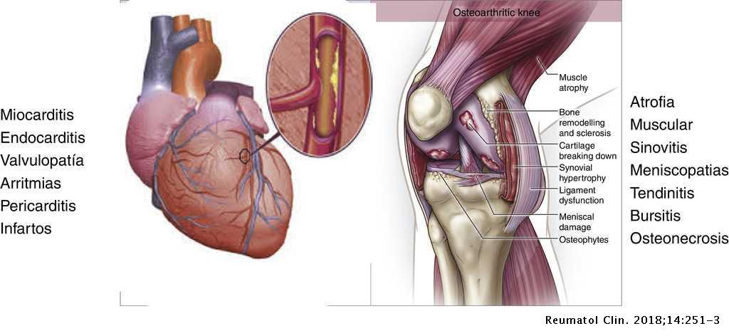 Articulații calde cu artrita. Ce este artroza articulațiilor intervertebrale