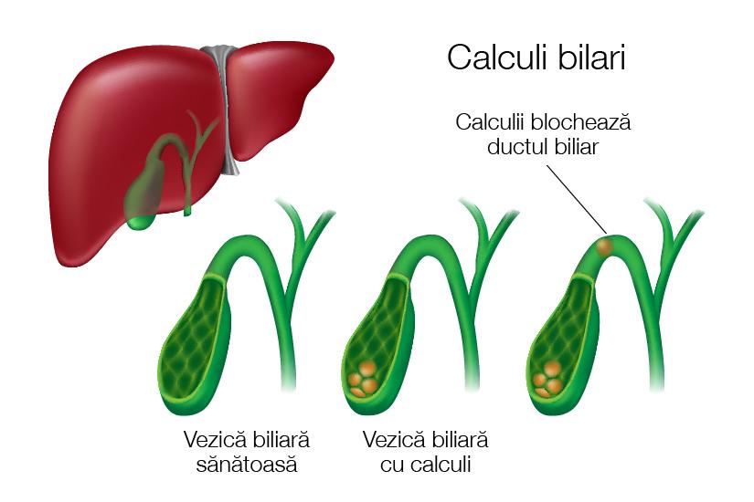 articulațiile biliare se vindecă