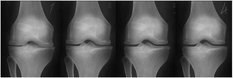semne de deteriorare a genunchiului наследственная предрасположенность к заболеваниям суставов