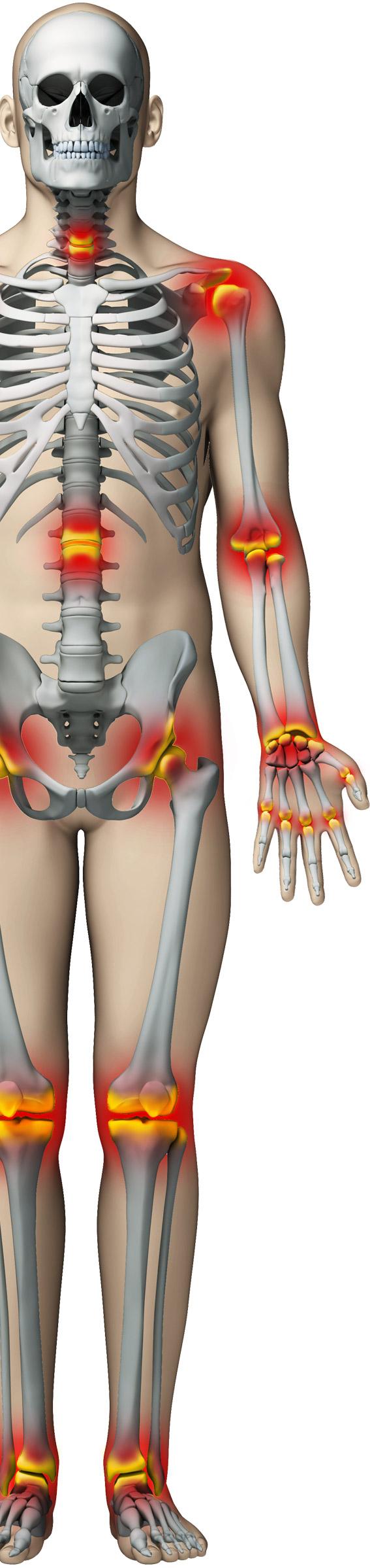 Dacă articulațiile doare în diferite locuri, Artrita picioarelor și brațelor