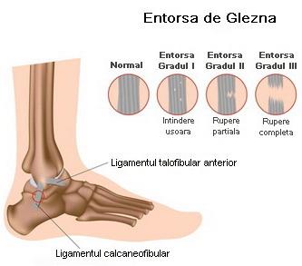 articulațiile piciorului se vindecă