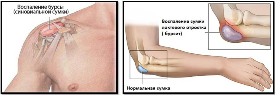 articulațiile rănite din ciclism)