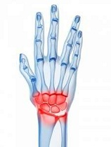 artrita mâinii drepte)