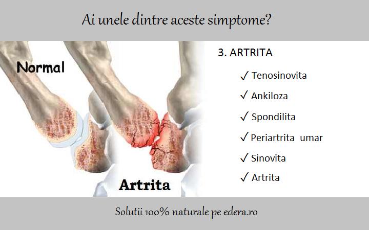artrita periartrita articulației umărului)