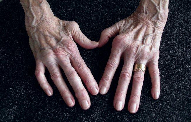 artrita vindecată a degetelor)