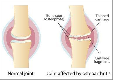 artroză tratament de paralizie cerebrală