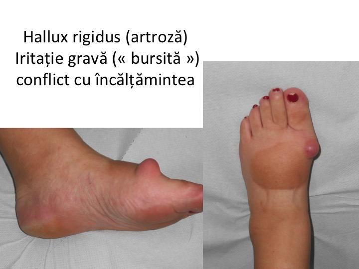 artroza articulației piciorului este