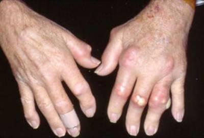 artroza carpică metacarpală
