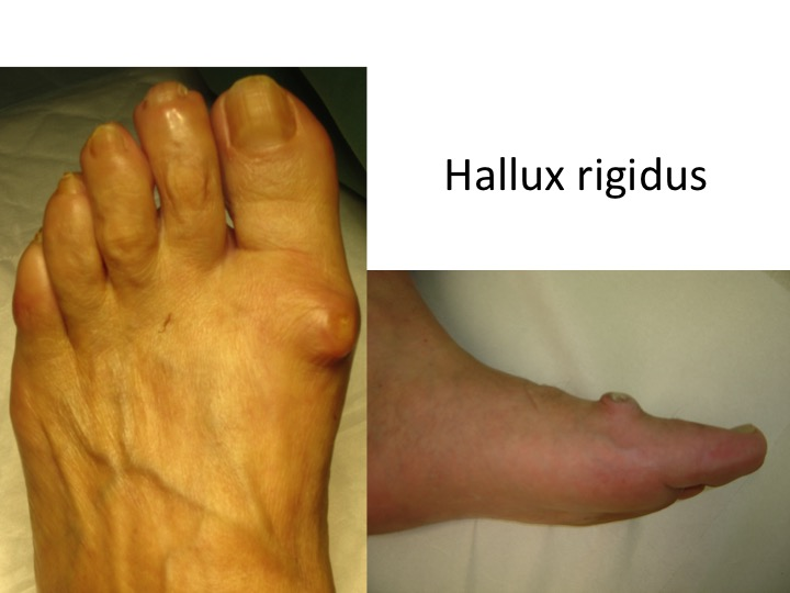artroza operației de tratare a degetelor mari