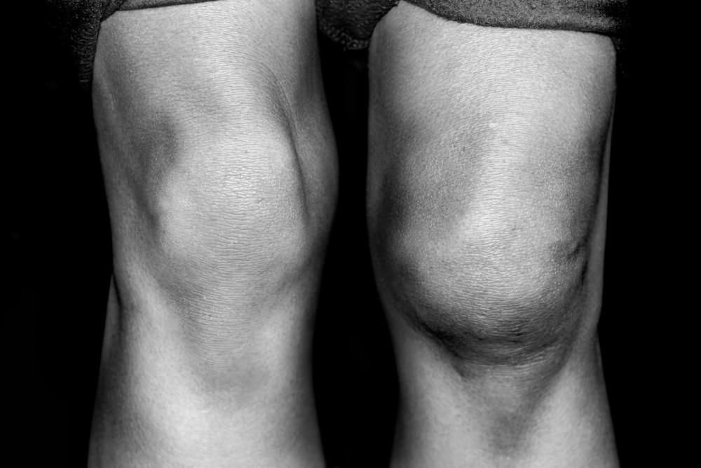 artroza osteofitoza a arcadelor