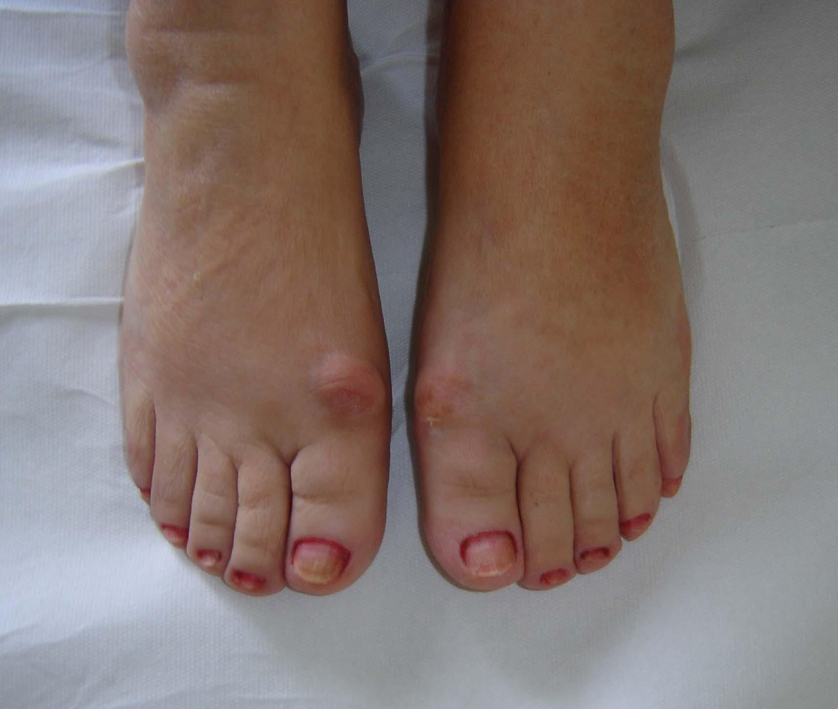 condroprotectori pentru osteoartrita unguentului genunchiului condroitină cu glucozamină naturală