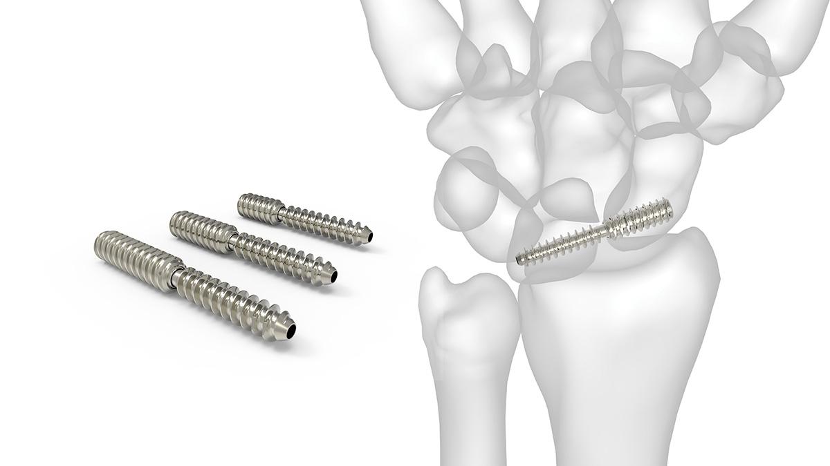 artroza scafoidă a scafoidului