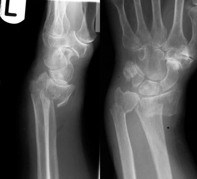Articulatia cotului – normal vs. patologic – Dr. Alin Popescu