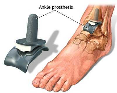 Tratamentul artrozei deformate a articulației gleznei
